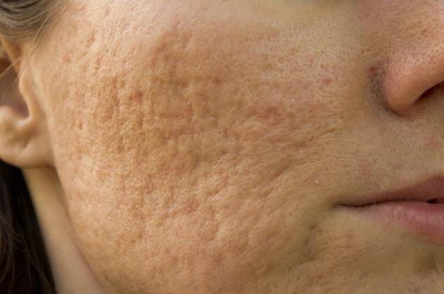 tratamiento casero para la gota el perejil y el acido urico alteraciones del acido urico